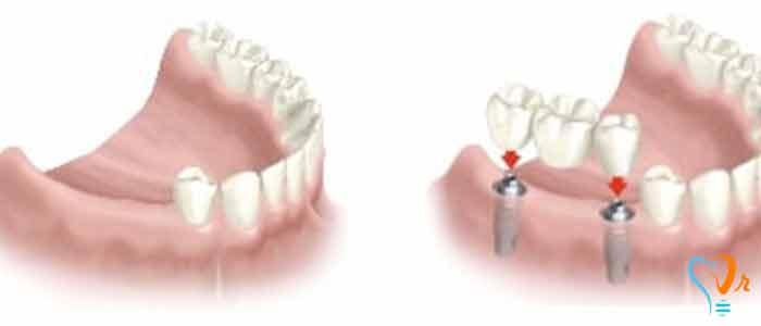 الحالات غیر المناسبة لزراعة الاسنان - لزراعة الأسنان