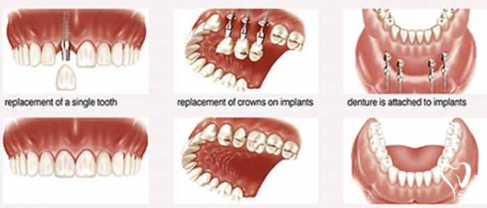 What are dental implant types and their functions? - Intramucosal Inserts: