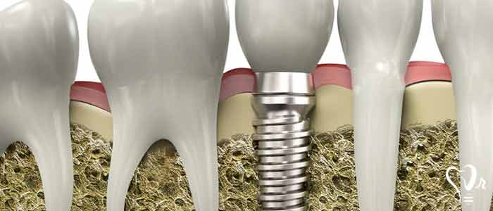 Dental implants for patients with osteoporosis - osteoporosis