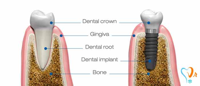 Some points about dental implants  - age of toothless