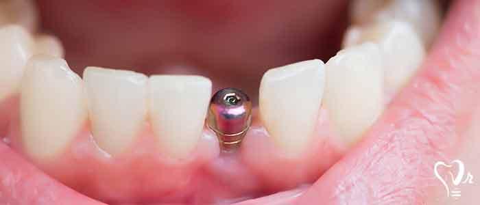 implant expert dentist