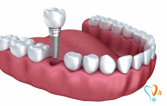 Dental implant prices