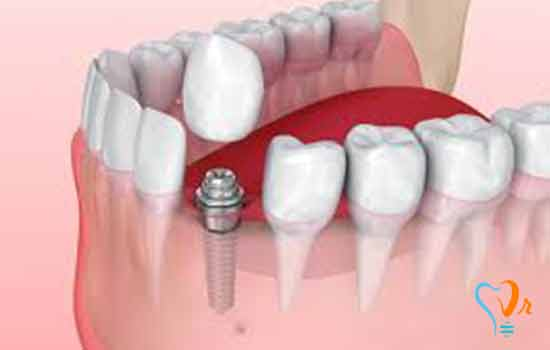 Implant without pain and bleeding