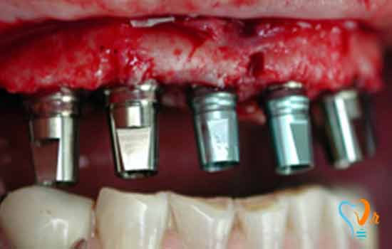 Immediate tooth implantation