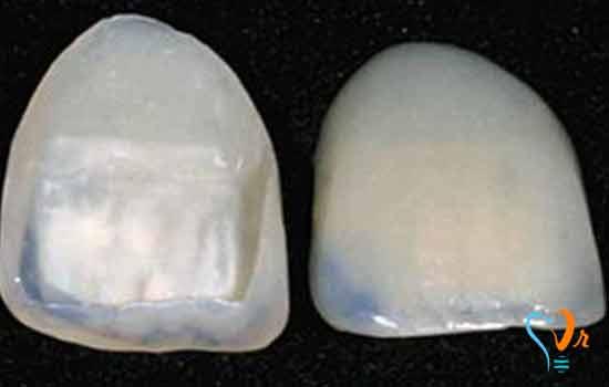 قشرة الأسنان