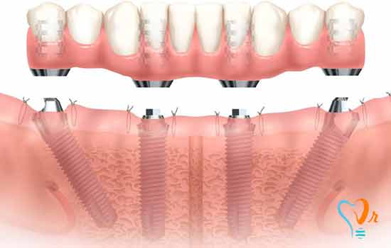 Implant in one day