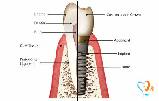 Dental implant information