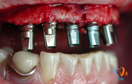 What is immediate loading of dental implants?