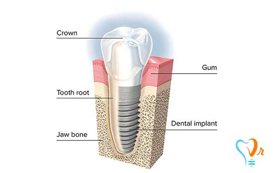 What are dental implant manufacturing stages?