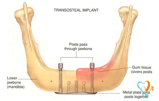 What are the types of dental implant?