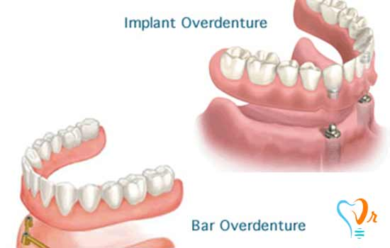 What are dental implant types and their functions?