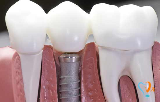 Dental implants for patients with osteoporosis