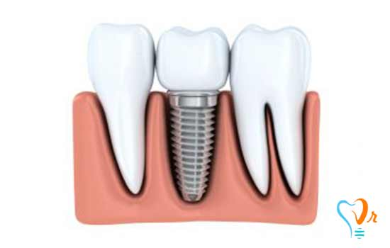 What are dental implant advantages?