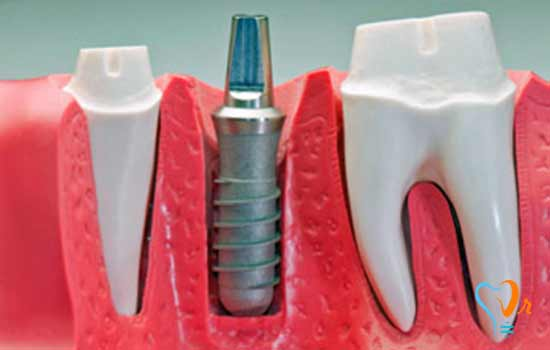What are the dental implant treatment stages?