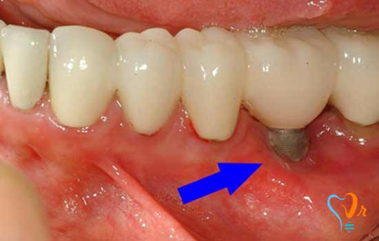Implant problems and implications