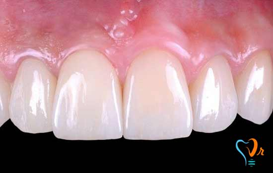 What are the risks and problems of immediate implant?