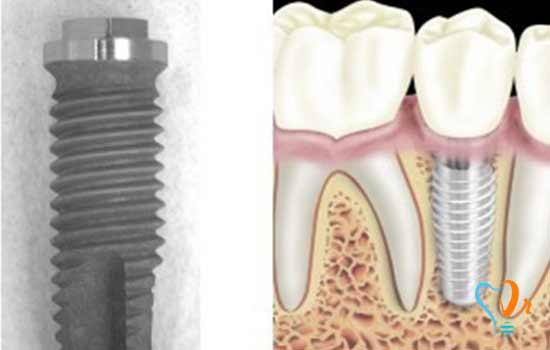 Which one is better: keeping and restoring teeth or pulling unhealthy teeth and dental implant treatment?