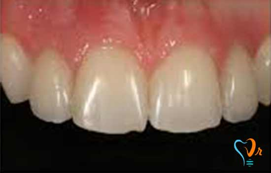 Some Points for Dental Implant Maintenance