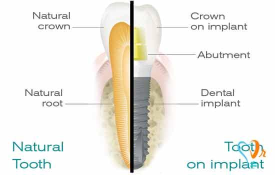 Benefits of Denture Implant-based Prostheses (Part 3)