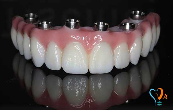 Effects of non-use dental implant method for lost teeth
