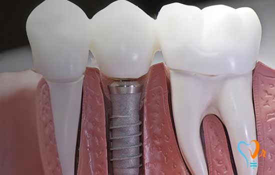 What is the lifespan of implant? Is it necessary to have short-term implant restoration?