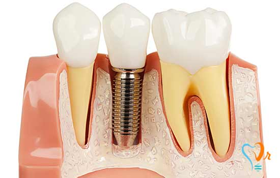 Dental implant methods