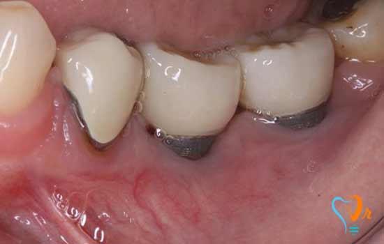 Risk of dental implant infection