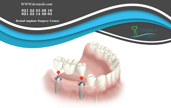 Time for fusion of dental implant