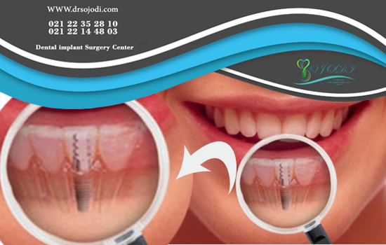 Is it necessary to have regular and periodic examinations by a dental expert after dental implant?