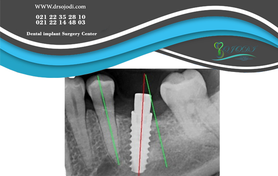 What are dental implant disadvantages and complications?