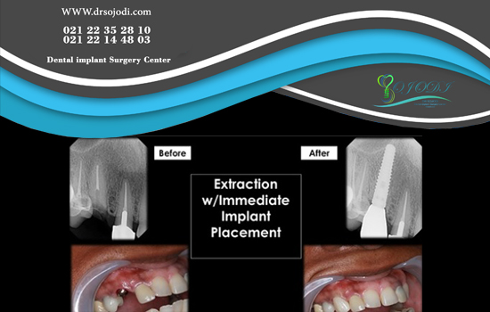 What is immediate implant?