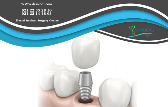 How natural teeth are replaced by dental implants?