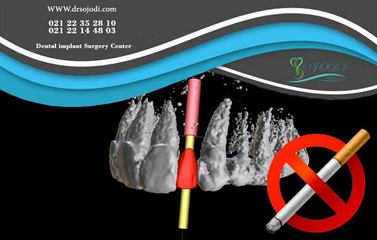 Implant for smokers and in patients with severe depleted bones