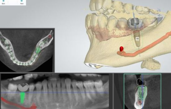 The relationship of the implant body and functional surface